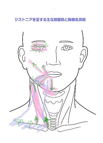 ジストニア(痙性斜頚・眼瞼痙攣・書痙等)の治療: モバイル対応 *さかのセラピールームブログ*