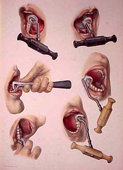 Dentalkeyusage