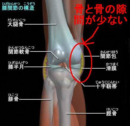 「膝の内側の痛み 原因」の画像検索結果