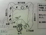 2007/1/19内視鏡2